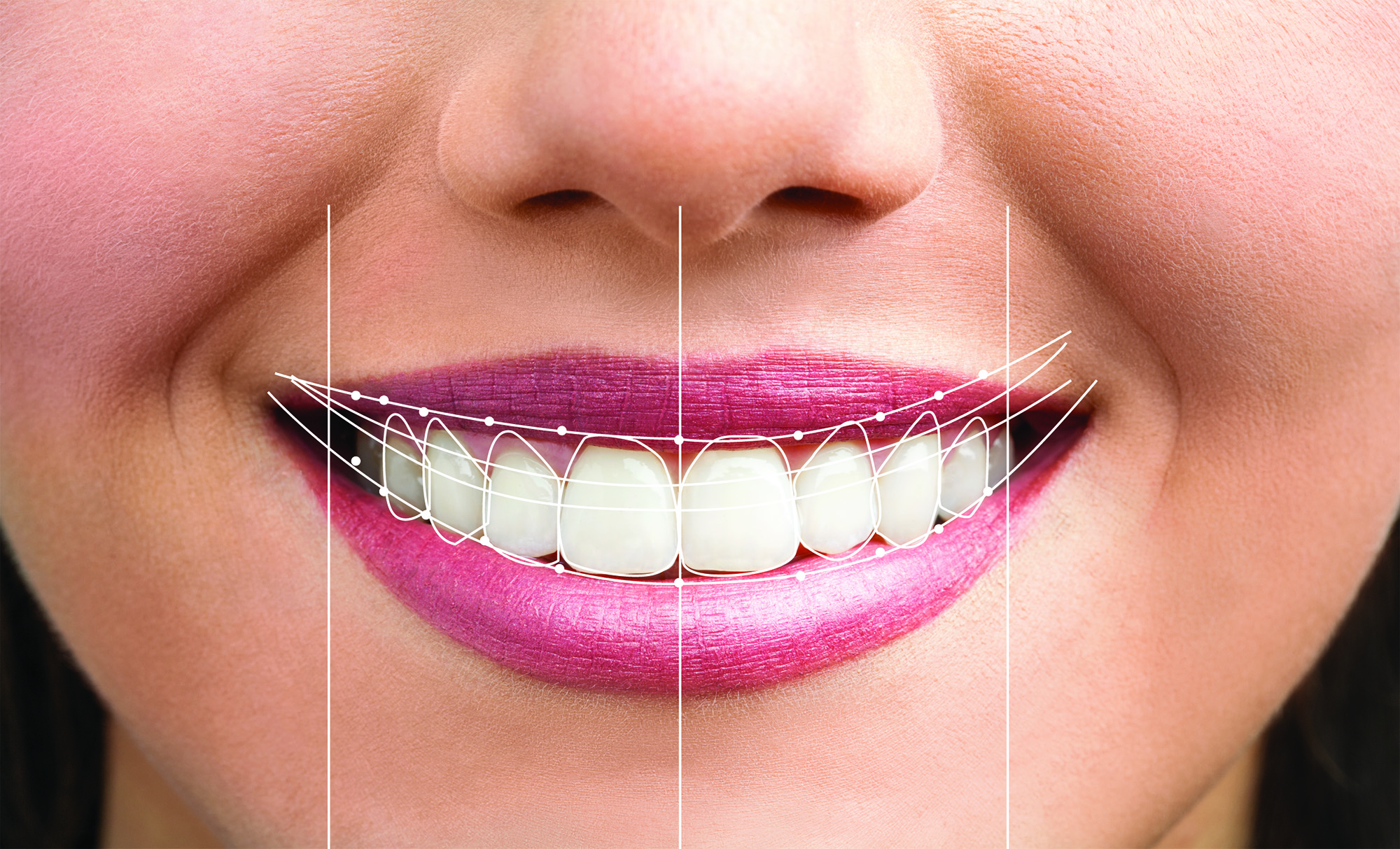 smile with symmetry