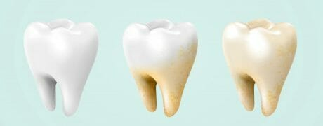 yellowing teeth
