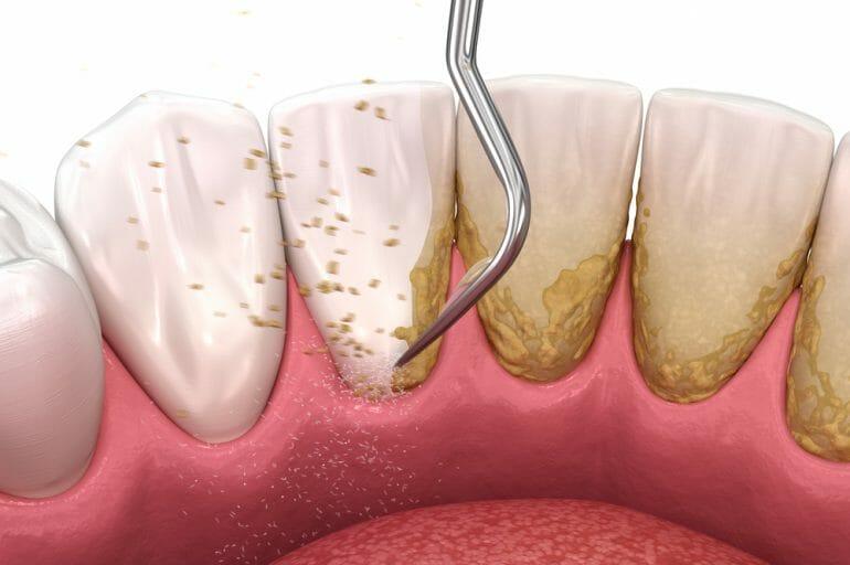 Tool Scraping Plaque Off Teeth